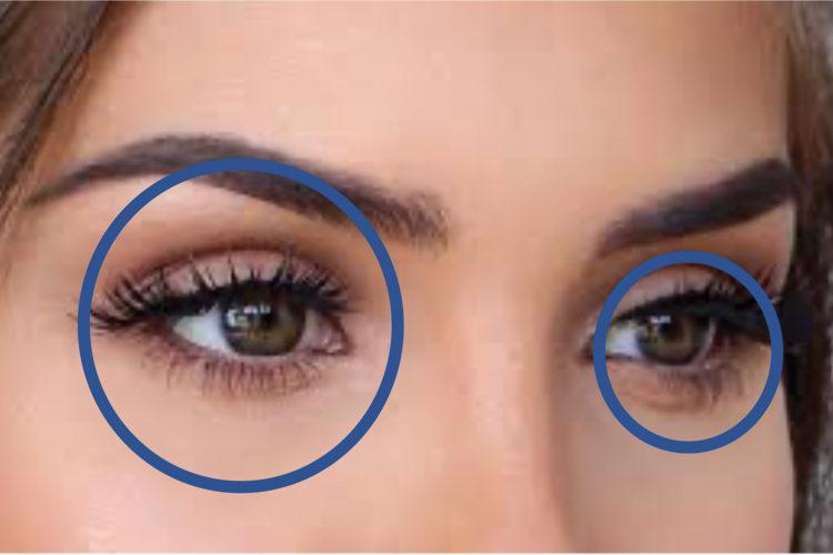 Accidentes oculares.